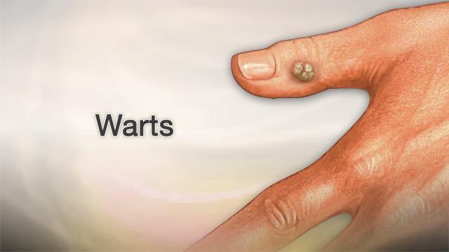 Warts Penn State Hershey Medical Center
