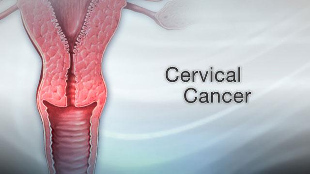 Genital Warts Penn State Hershey Medical Center