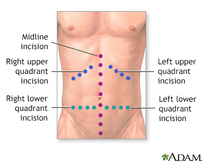 appendicitis inflammation and single abdominal incision Appendicitis (appendix) symptoms, diagnosis and treatment posted by miranda stephens - stomach problems - 0 comment the appendix is attached to your intestines and protrudes out from the colon on the right side of the abdomen.