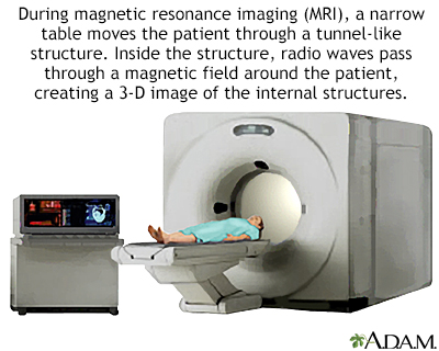 Is an MRI scan dangerous. There are no known dangers or side effects  connected to