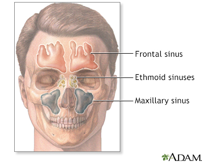 Sinusitis penn state hershey medical center for Floor of nasal cavity