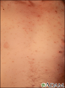 Chickenpox - lesions on the chest