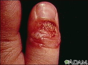 lip herpes images