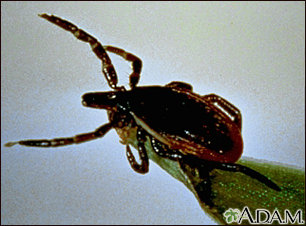 Tick, deer - adult female
