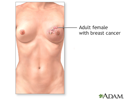 Normal nipple appearance for healthy breast