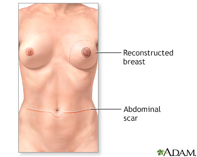 tattoos pictures for women breast. Breast reconstruction