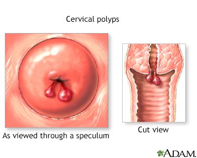 Female reproductiv... Female reproductive anatomy Cervical polyps ...