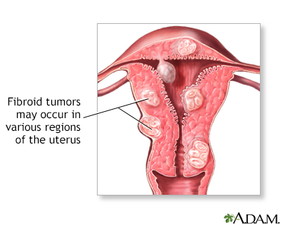 Causes of swollen uterus after sex