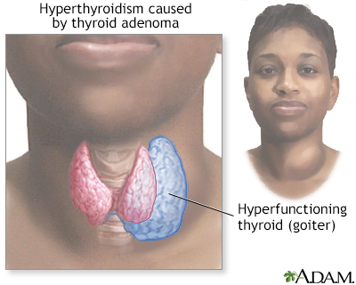 Goiter - Penn State Hershey Medical Center