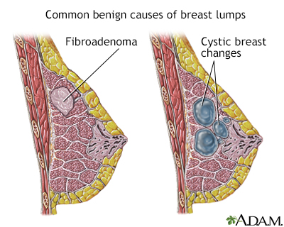 of breast lumps Causes