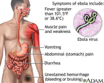 Ebola virus penn state hershey medical center ebola virus disease reheart Images