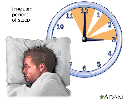 Irregular sleep