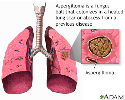 In Some Individuals Exposure To These Fungi Also Can Lead Asthma Or A Lung Disease Resembling Severe Inflammatory Called Allergic