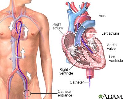 Decisionassist Penn State Hershey Medical Center Heart