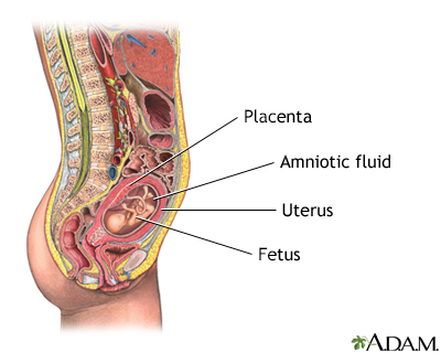 Amniocentesis - Penn State Hershey Medical Center