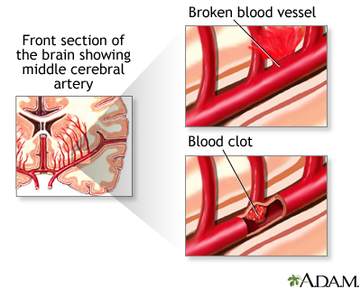 blood clot a mass of congealed blood blood clots can block blood ...