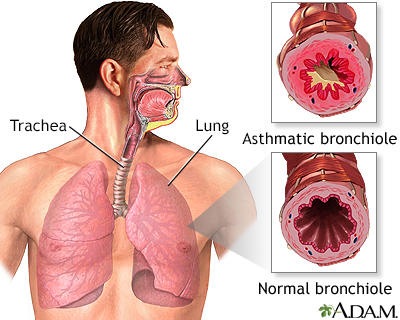 an introduction to the issue of asthma a condition of the bronchial tubes Continued asthma affects the airways, the bronchial tubes that carry air into the lungsin people with asthma, the lining of these airways becomes inflamed.