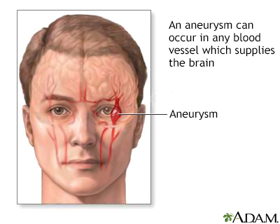 How Dangerous Is an Aneurysm recommend