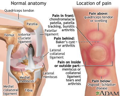 the location of knee pain can help identify the problem pain on the