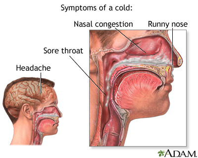 Nasal Congestion and Pregnancy