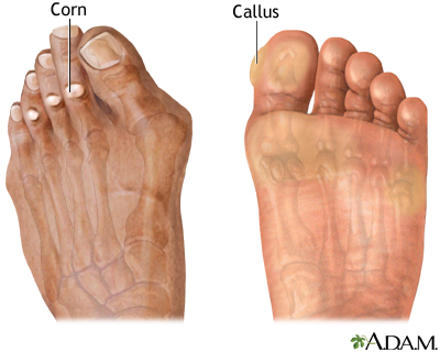 Corns and calluses - Penn State Hershey Medical Center