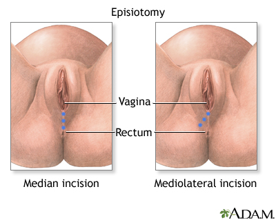 Episiotomy - Penn State Hershey Medical Center