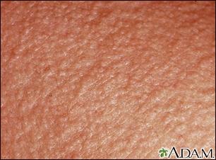 Erythema toxicum o... Erythema toxicum on the foot Heat rash Heat rash ...