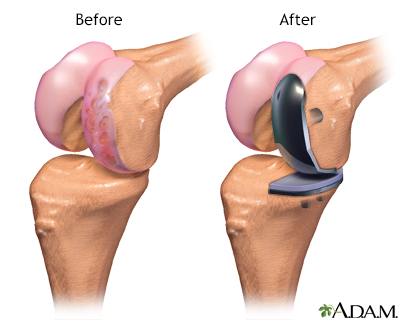 Before and after images of partial knee replacement - left image shows before with problematic area showing as red and worn; right image shows device installed over problematic area, pads on both upper and lower bone areas