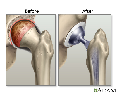 Before and after images of hip joint replacement - left image shows before with problematic area showing as red and worn; right image shows device installed replacing the problematic area, cup in hip bone, ball joint on thigh bone