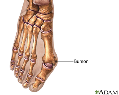 Shoes Bunions Women on Bunion Removal Series Penn State Hershey