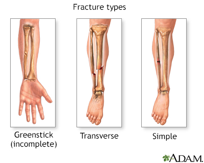 Fracture types (2) - Penn State Hershey Medical Center