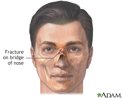 Nasal fracture