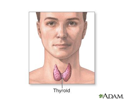 Facial numbness thyroid surgery