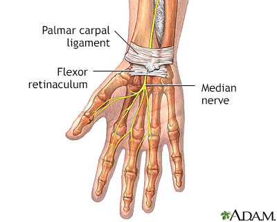 Carpal tunnel syndrome - Penn State Hershey Medical Center