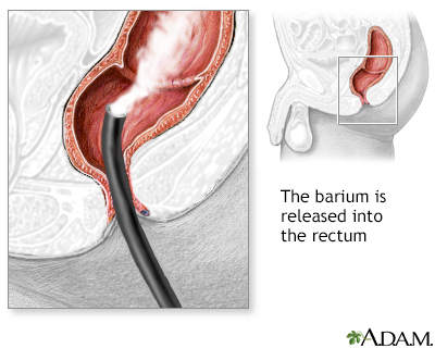 Barium Enema Penn State Hershey Medical Center