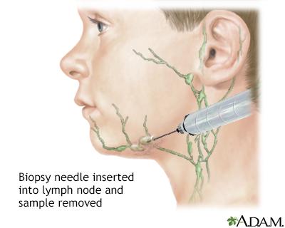 Lymph node culture penn state hershey medical center lymph node culture ccuart Images