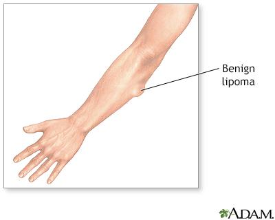 Skin lumps - Penn State Hershey Medical Center