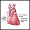Heart bypass surgery - series