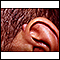 Keloid above the ear