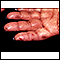 Dermatitis, herpetiformis on the hand